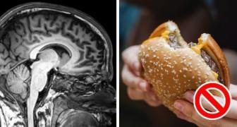 Le 13 abitudini negative che fanno invecchiare il nostro cervello prima del tempo