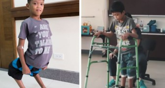 A boy taunted due to a physical deformation finally has a life-changing operation and here are his first steps
