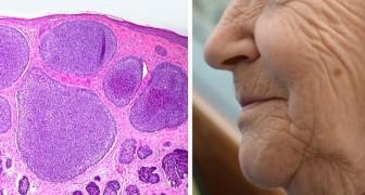 Il farmaco anti-invecchiamento che elimina le cellule anziane supera a pieni voti il primo test sull'uomo