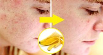 Alle Vorteile der Bananenschale, die ihr sicherlich nicht kanntet