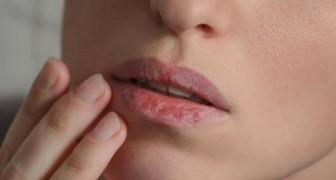 8 symptomen van uitdroging die de meeste mensen negeren