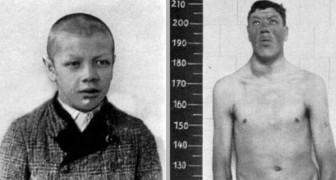 La storia di Adam Rainer, l'unico uomo che è stato sia nano che gigante