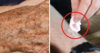 Come eliminare le macchie della vecchiaia usando solo 2 ingredienti totalmente naturali