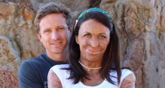 Een brand heeft haar gezicht misvormd, maar haar man heeft aangetoond dat liefde niet gebaseerd is op het uiterlijk