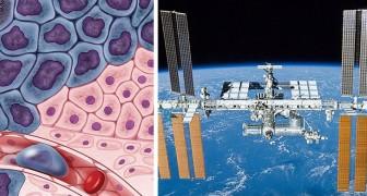 Die Abwesenheit von Schwerkraft tötet Tumore: Die neue Grenze des Kampfes gegen Krebs liegt im Weltraum
