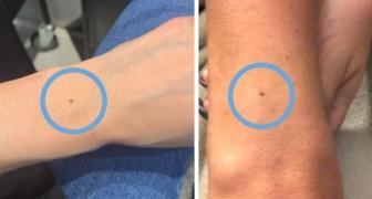 Molti di noi hanno un neo al centro del polso: i dermatologi spiegano perché