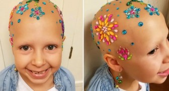 This little girl diagnosed with alopecia participates in a Crazy Hair Day contest and wins a prize