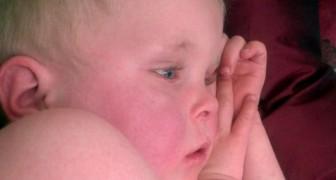 Scarlattina: come riconoscere i sintomi di questa patologia molto comune nei bambini