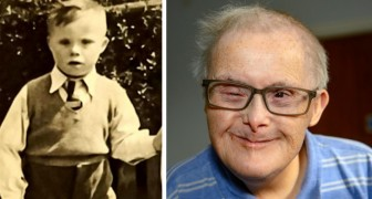 The doctors said he would not live past the age of 10 but that was 77 years ago