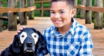 Este menino com vitiligo venceu a depressão graças a um cachorro com sua mesma condição