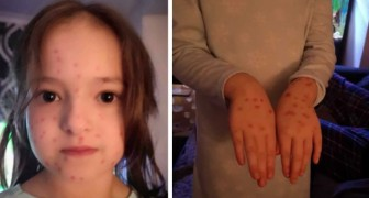 A 6-year-old girl covers herself with chickenpox like dots with a red ink permanent marker to avoid going to school