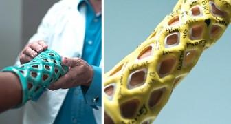 Questa start-up ha creato un esoscheletro più leggero e pratico rispetto al gesso tradizionale