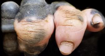 En gorilla som föddes utan pigment på handen påminner oss om hur mycket dessa djur liknar oss
