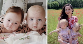 A woman gave birth to a very special pair of twin girls and one of them has Down Syndrome