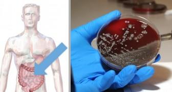 Infarto: una ricerca italianarivelala complicità di un batterio intestinale, aprendo la strada a nuove terapie