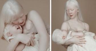 Tussen deze twee albino-zussen zit 12 jaar verschil: hun uiterlijk is uniek en fascinerend