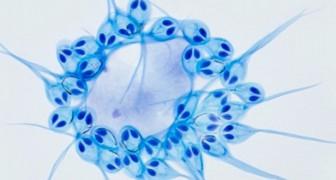 Der erste vielzellige Organismus, der ohne Sauerstoff überlebt, ist ein Parasit des Lachses: eine Forschung hat ihn entdeckt