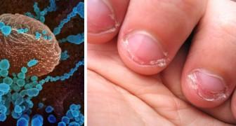 Experten warnen: An den Nägeln kauen kann das Risiko erhöhen das Coronavirus zu bekommen.
