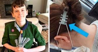 Un ragazzo stampa in 3D delle protezioni per le orecchie di medici e infermieri che indossano la mascherina