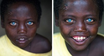 Abushe, the blue-eyed Ethiopian child: he is 8 years old and suffers from a rare syndrome that made him famous