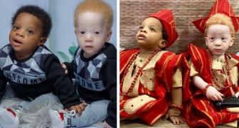 Una mamma nigeriana partorisce due gemellini diversi: uno ha la pelle chiara e i capelli dorati