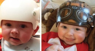 Deze kunstenares laat kinderen glimlachen door orthopedische helmen om te toveren in schattige gekleurde helmen