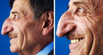 De neus van deze man meet 8,8 cm: een record waardoor hij in het Guinness Book of Records kwam te staan