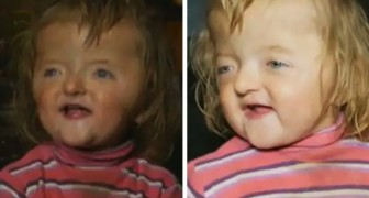 Daycare center refuses to admit 2-year-old with a skull malformation because she would scare the other children