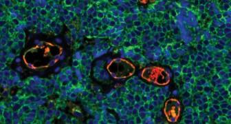 La scienza fa passi da gigante, ma perché non abbiamo ancora una cura per il cancro?