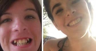 11 foto's laten zien hoe een goede tandarts iemands gezicht kan transformeren