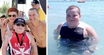 Este niño engorda continuamente a causa de una rara enfermedad: logra sobrevivir solo gracias al deporte