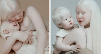 Nacen con una distancia de 12 años una con otra y ambas son albinas: la curiosa historia de dos hermanas realmente únicas