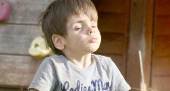 Una donna adotta un bimbo che viveva rinchiuso in un orfanotrofio lager: ora sono madre e figlio