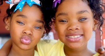These twins have become celebrities thanks to the unusual genetics of their startling eyes