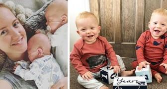 Eles nascem com dois dias de diferença um do outro: a história de um nascimento de gêmeos muito complicado