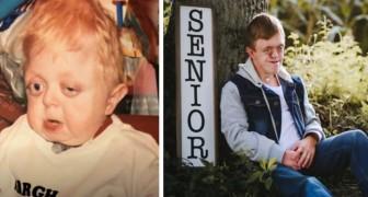 Dicevano che non avrebbe superato i 18 mesi, ma questo ragazzo disabile ha compiuto 18 anni e si è diplomato