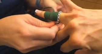 Il semplice trucco per rimuovere un anello incastrato al dito con un laccio delle scarpe