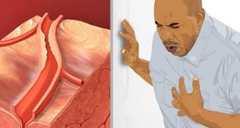 Ces cinq signes peuvent indiquer qu'une crise cardiaque est en cours : les connaître peut sauver la vie