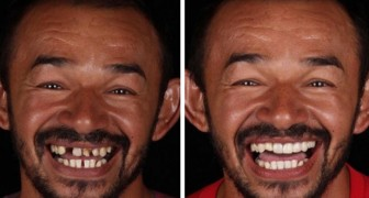 Een Braziliaanse tandarts schenkt een nieuwe glimlach aan minder bedeelden: 20 foto's tonen hun ongelooflijke transformaties