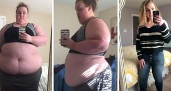Pesava 218 kg e si muoveva a stento: quando i medici le hanno detto che rischiava la vita, ha avuto la forza di cambiare
