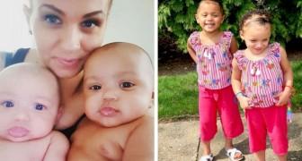 Duas gêmeas nascem dos mesmos pais, mas com a cor da pele diferentes: um verdadeiro espetáculo da genética
