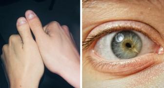 15 photos de personnes qui ont décidé d'afficher sans complexe leurs particularités physiques