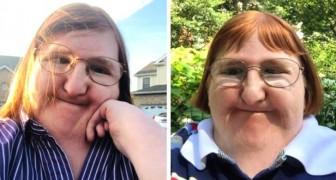 Ze pestten haar op internet vanwege haar handicap: ze reageert door een jaar lang selfies te posten