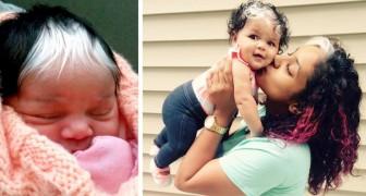 Mädchen wird mit einem sonderbaren Fleck weißen Haars geboren: Ein Merkmal, das sie von Mutter und Großmutter geerbt hat