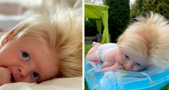 A baby is born with very thick blond hair: My husband and I are brunette!