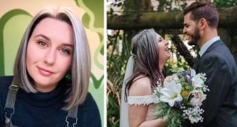 Je ne veux plus les cacher : une jeune femme de 25 ans aux cheveux blancs cesse de les colorer et s'aime telle qu'elle est
