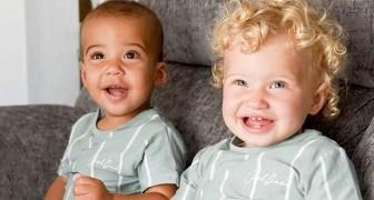Hanno il colore della pelle diversa ma sono gemelli biologici: il caso di questi 2 fratellini è molto raro