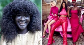 Viene bullizzata per anni a causa del colore della sua pelle: ora, è una modella di grande successo