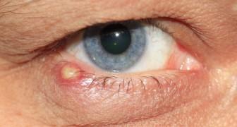 Ein Grieskorn ist eine lästige Schwellung, die unsere Augenlider betreffen kann: einige der Hauptursachen