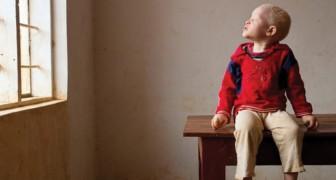 Ecco cosa vuol dire per un bambino albino nascere nel continente africano